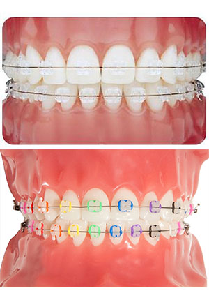 Types Of Braces Murphy Lucas Tx Robertson Orthodontics